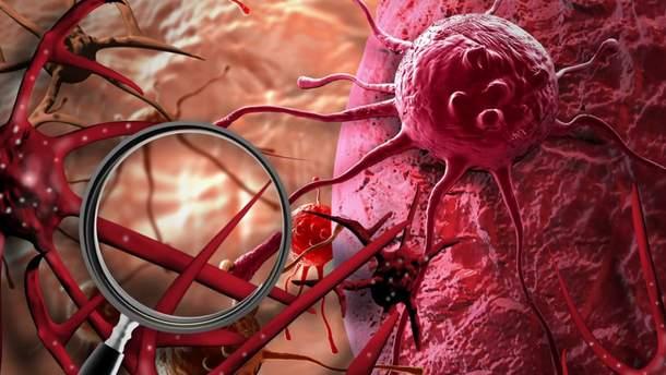 У Японії схвалили революційні ліки від раку