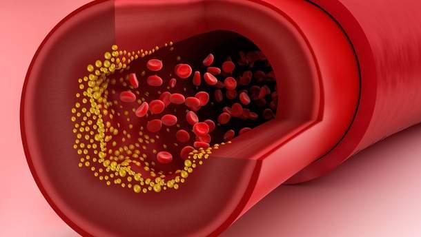 Як шкодить холестерин