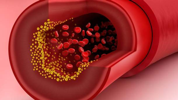 Как вредит холестерин