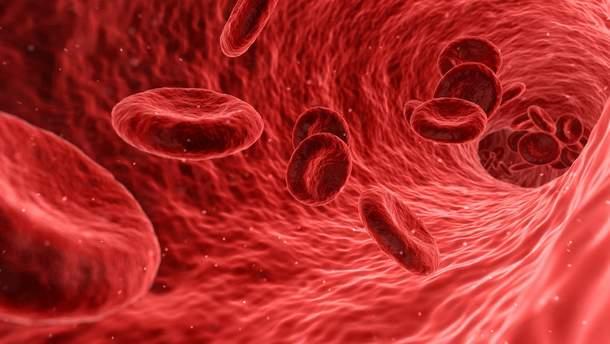 Гемофілія: лікування, симптоми, чому виникає