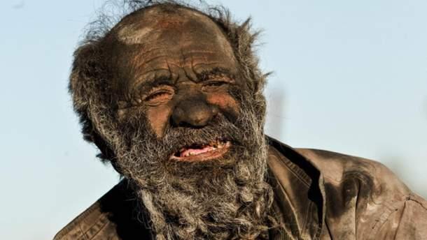 Людина, яка не милася 60 років