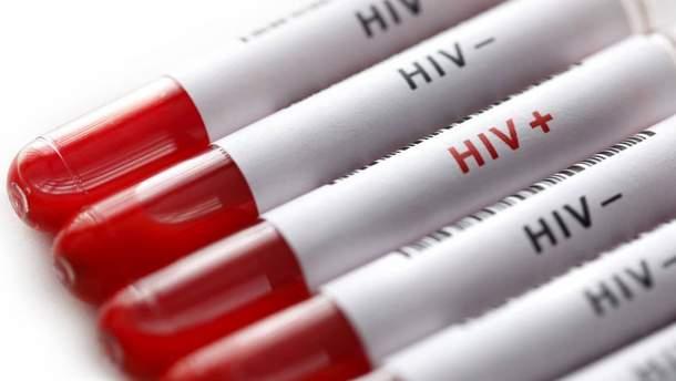 Бесплатное тестирование на ВИЧ