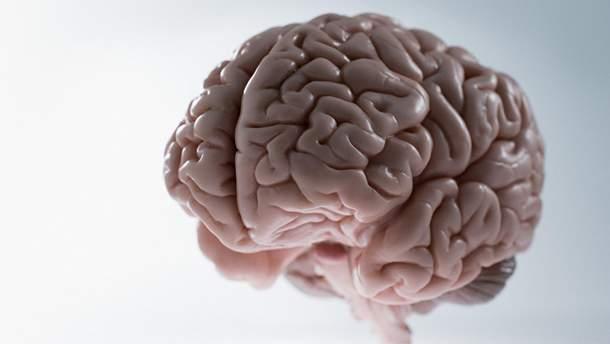 Штучний мозок