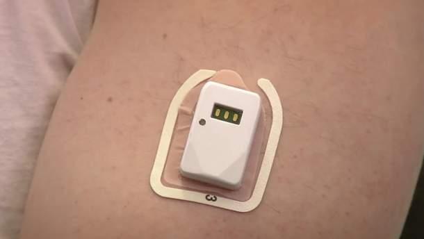 Створили пластир, який вимірює рівень глюкози