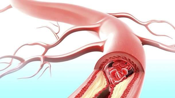 Яка ознака вказує на розвиток серцевої недостатності