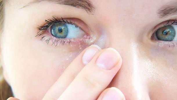 Назвали найпоширеніші алергічні хвороби очей