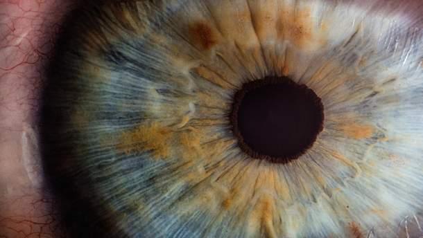 Рак ока або ретинобластома: які симптоми свідчать про страшне захворювання