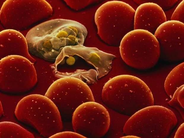 Малярія: симптоми