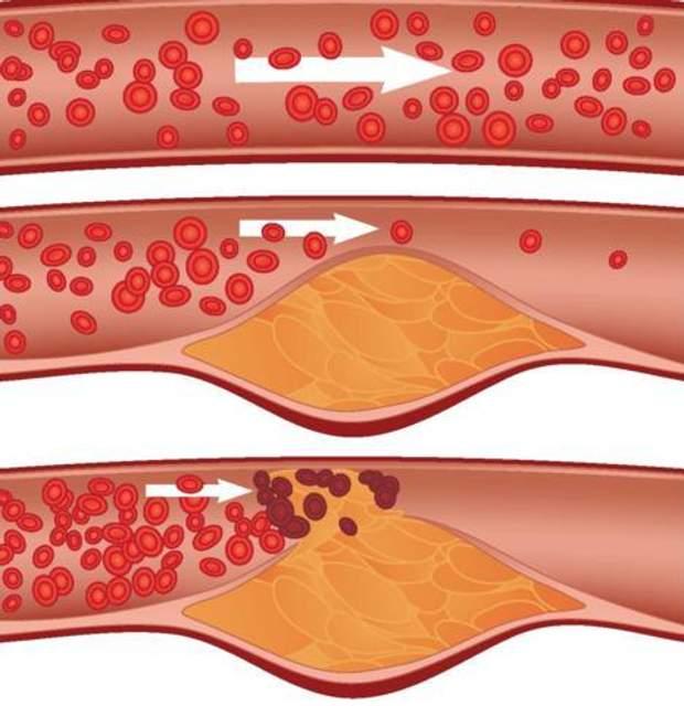Холестеринові бляшки можуть бути причиною змерзлих ніг