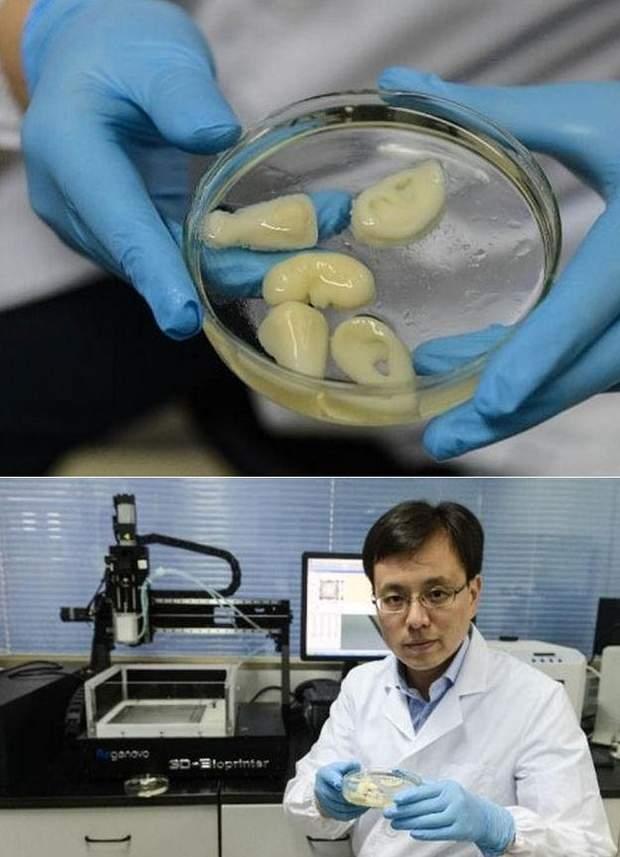 3-D роздруківка нирок для трансплантації