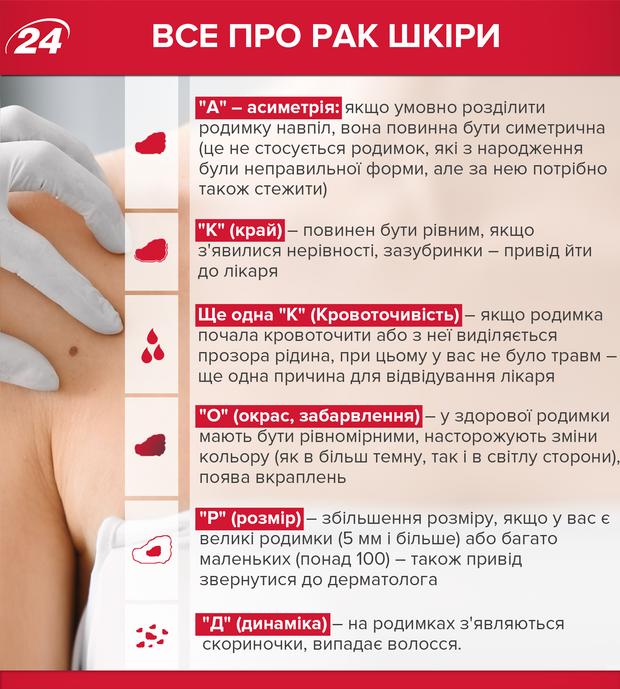 Рак шкіри меланома розпізнати