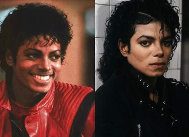 Майкл Джексон хворів на вітиліго