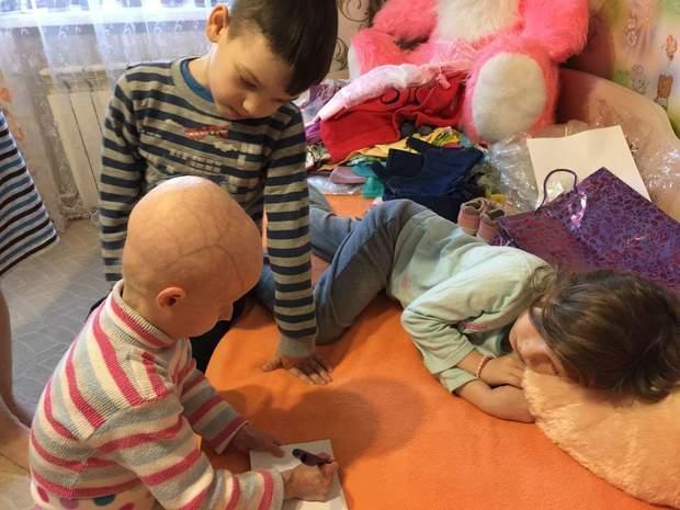 Попри хворобу, дівчинка залюбки грає з однолітками