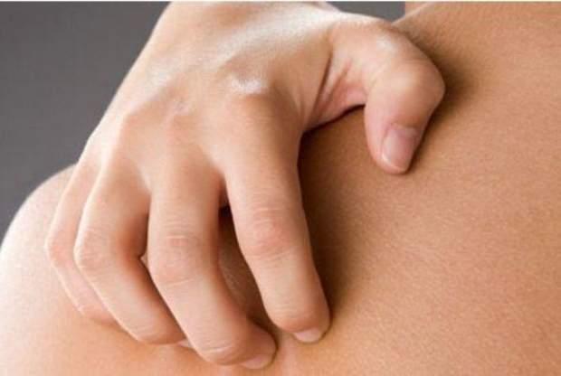 Псоріаз - симптоми та лікування