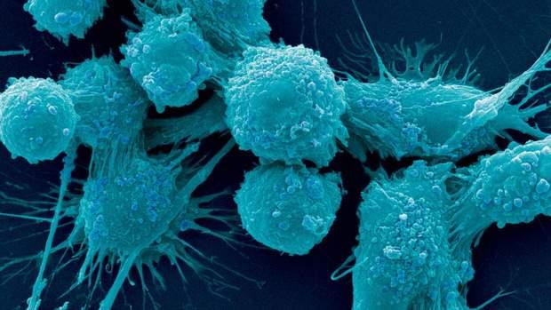 Новий метод діагностики раку