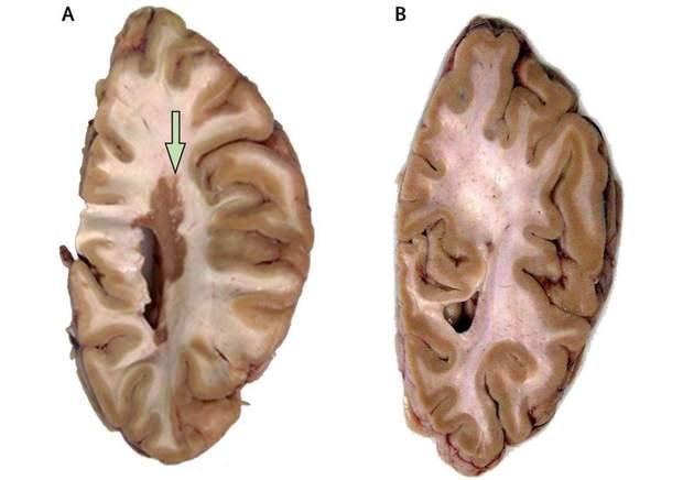 Зрізи мозку