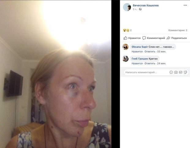 Актор Кошелєв побив жінку