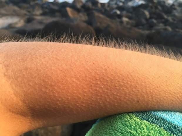 55% людей відчувають мурашки по тілі під час перегляду живих виступів