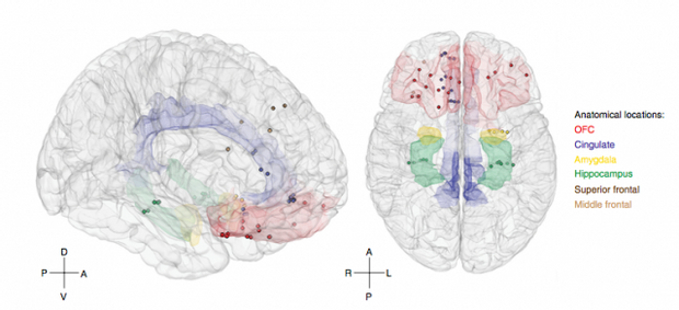 Настрій можна визначити за активністю мозку
