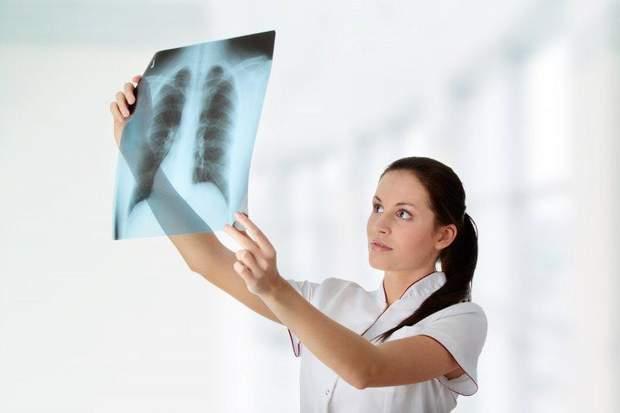 Туберкульоз назвали найбільш смертоносною хворобою у світі
