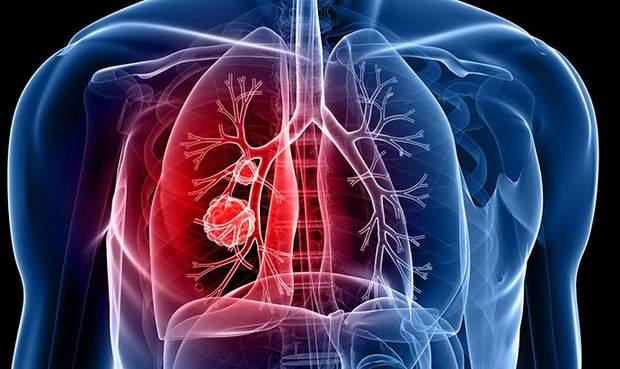 Рак, легені, захворювання, лікування, виноград, властивості, Женева, Швейцарія, наука