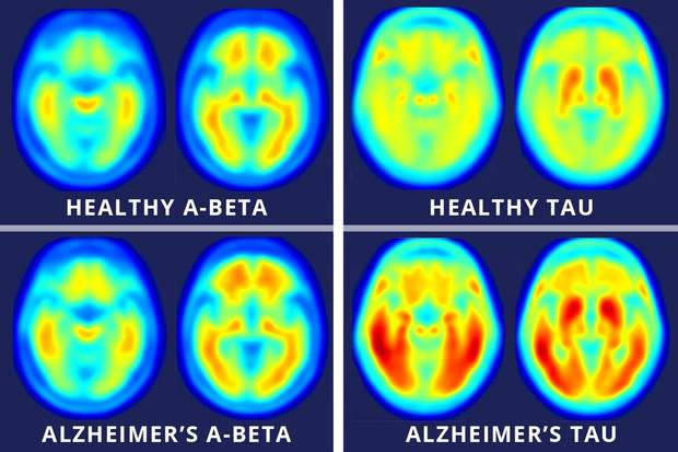 Концентрація амілоїдних та тау-білків в мозку, враженому хворобою Альцгеймера