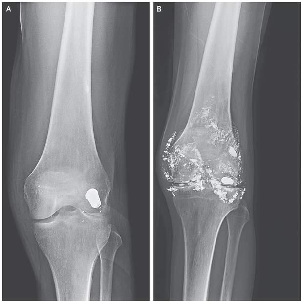 Зліва – куля, яка застрягла 14 років тому, справа – куля, яка частково розпалася