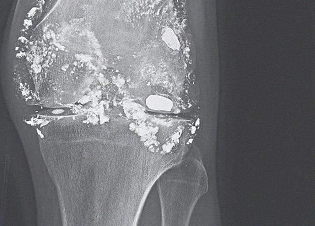 Коліно пацієнта після розпаду кулі на свинець