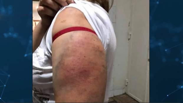 побиття жінок поліцейськими київ