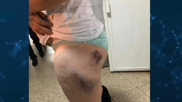 побиття жінок поліцейськими