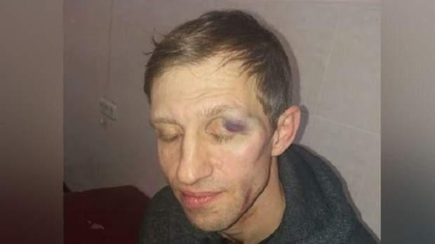 У Києві батько побив вчителя