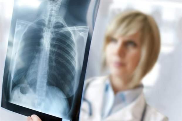 Лікар може призначити рентген органів грудної клітини