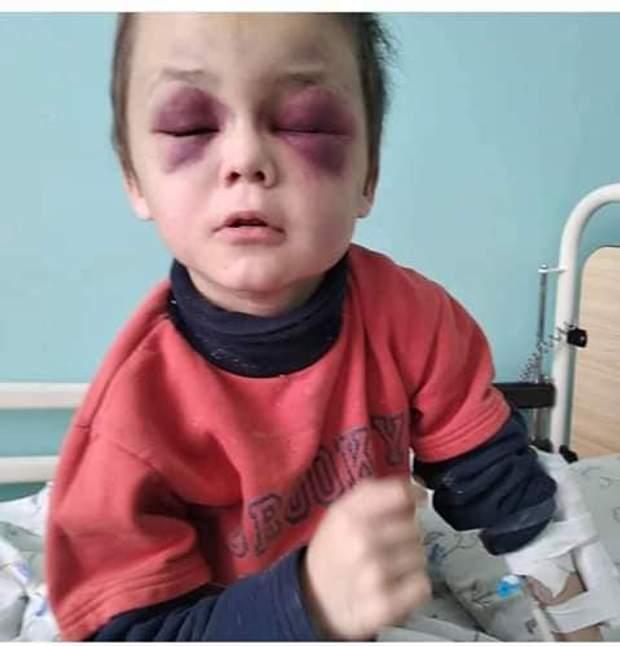 жорстоке побиття, насилля в родині