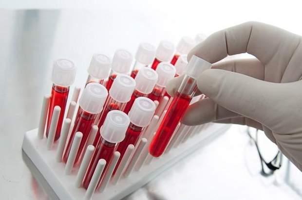 Переливанні крові від молодих донорів не омолодить людину