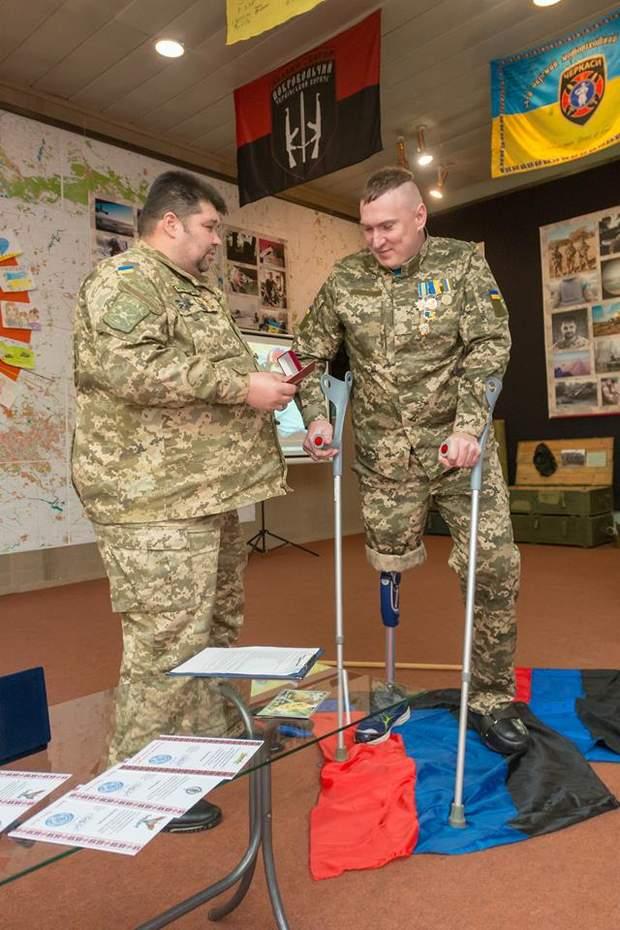 Сергій втратив ногу під час бойових дій на війні на Донбасі