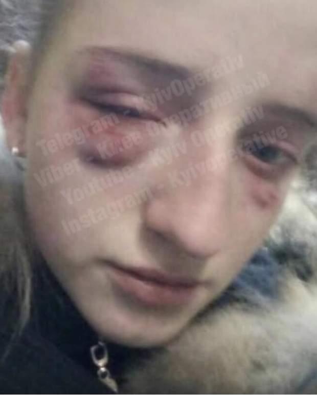 Київ булінг підлітки побиття дівчинка школярка Троєщина