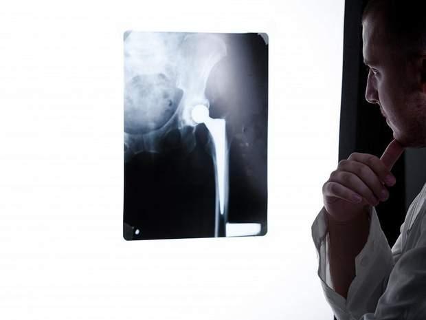 Лікар відправить на рентген, щоб виявити який у вас тип травми