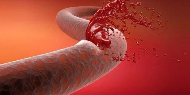 Гемофілія – порушує зв'язування крові