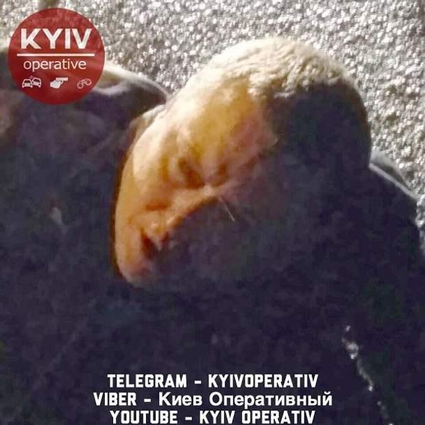 Київ кримінал поліція напад ніж кримінальні новини