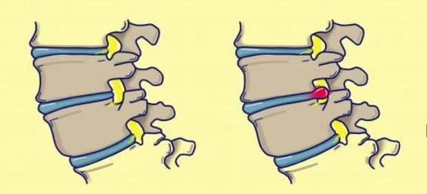 Здоровий хребет і з грижею
