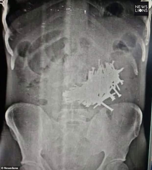 Хірурги витягли 116 п'ятисантиметрових цвяхів у шлунку