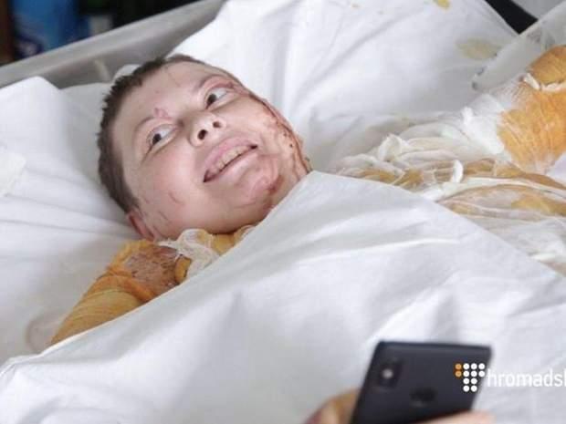 Катерина Гандзюк після нападу