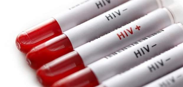 Вчені створили стійкість до ВІЛу, але вкоротили життя близнюкам