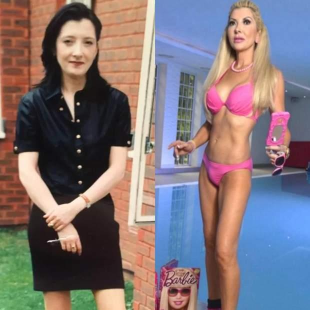 Женщина сделала 105 пластических операций: шокирующие фото до и после