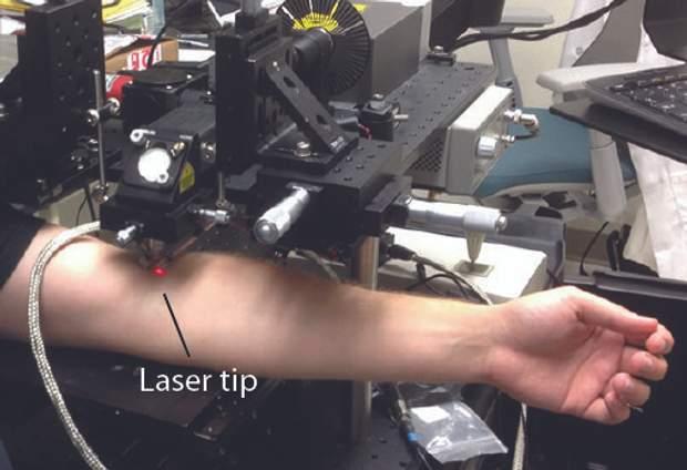 Створили лазер, який знищує до 96% ракових клітин в крові