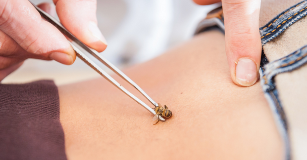 Одним з поширених методів апітерапії є лікування бджолиною отрутою