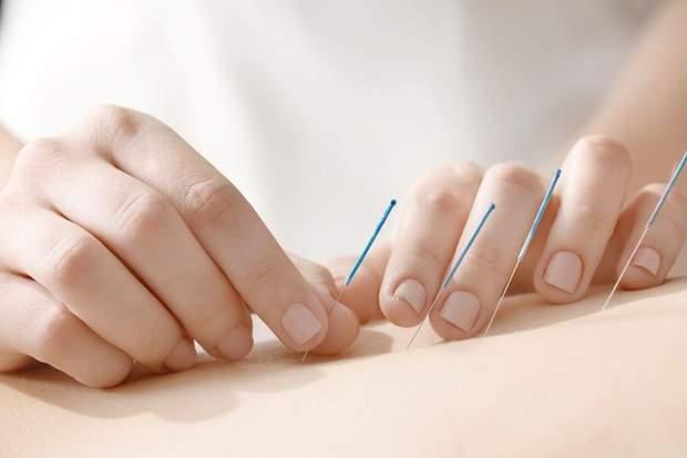 Акупунктура може вилікувати біль