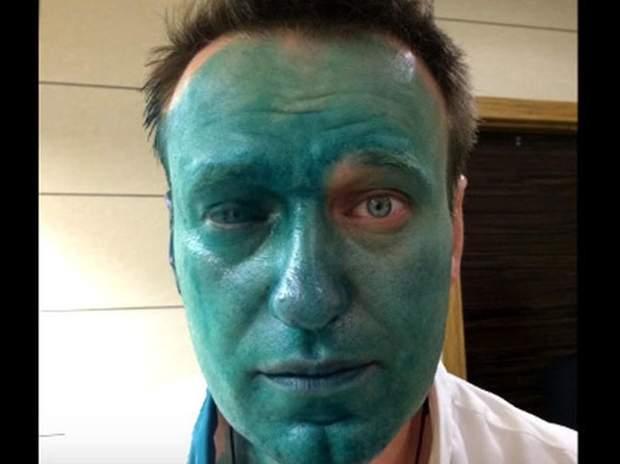 Навальний, зеленка, політика, Росія, опозиція