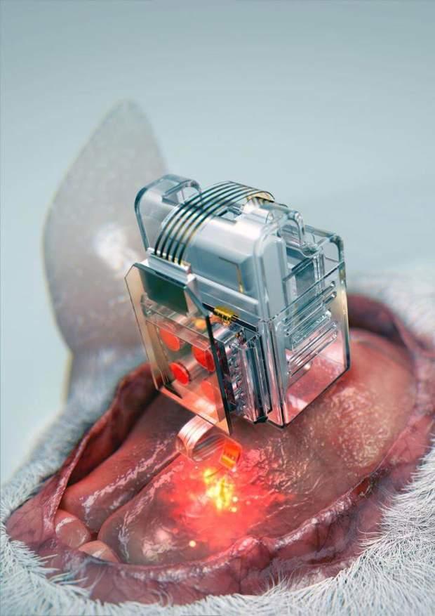 Імплант для мозку