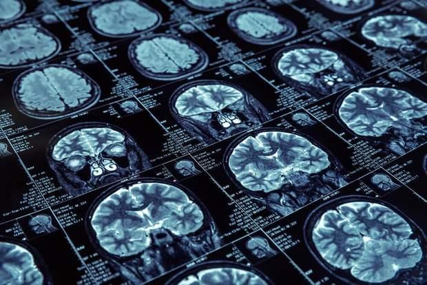 Паразит міг потрапити у мозок з води